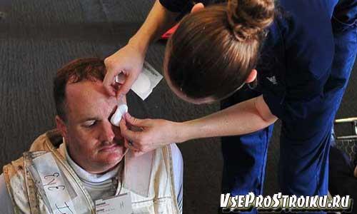 Ожог глаз от сварки: первая помощь